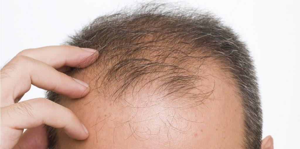 microneedling for hair loss